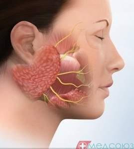 Невралгія трійчастого нерву
