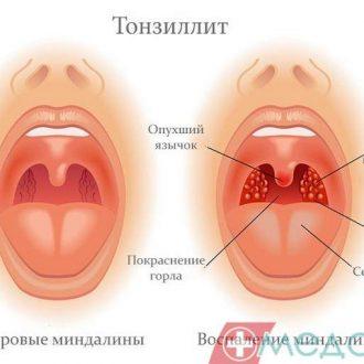 Тонзиліт – сезонне захворювання, чи підступний хронічний ворог?