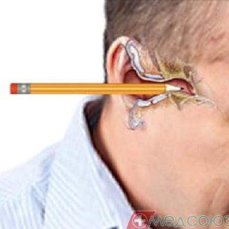 Что нужно знать об инородных телах наружного слухового прохода?