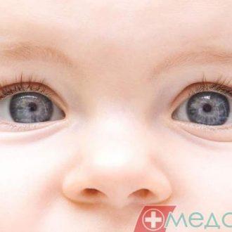 Дакріоцистит у немовляти? Вирішуйте проблему негайно!