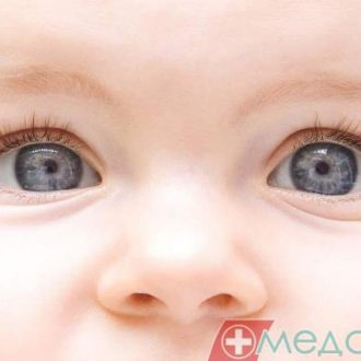 Дакриоцистит у младенца? Решайте проблему немедленно!