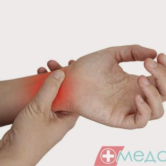 Що таке «тендовагініт», або хвороба де Кервена?