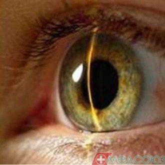 Закрытоугольная глаукома – редкая и коварная гостья!