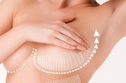 Уменьшение груди или редукционная маммопластика